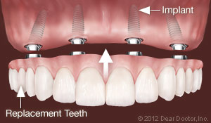 Dental Implants Replace All Teeth.